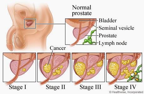 Simptom kanser prostat