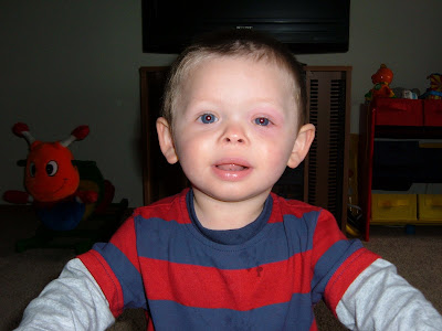 The picture right below this is from when he got Pink Eye. My poor baby!