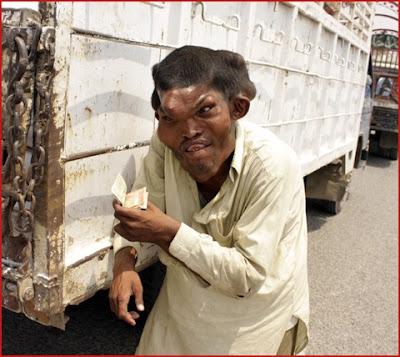 Man with Big Head- Sain Mumtaz