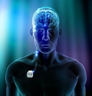 external image neurotransmisor+parkinson.jpg