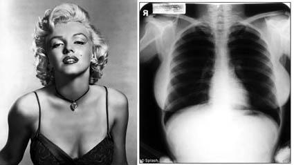 Clique para ampliar raio-X de Marilyn Monroe