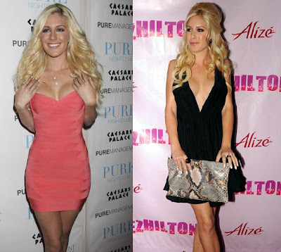 heidi montag dress fashion