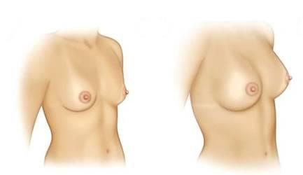 Mamoplastia De Aumento Foi Criada Para Aumentar Seios Naturalmente