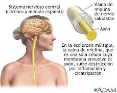 Trastorno Del Sistema Nervioso