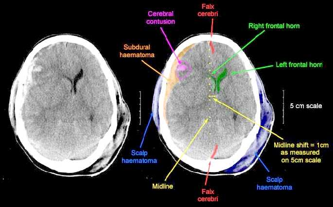 Psychiatrische Untersuchung: Ein Leitfaden für Studierende,