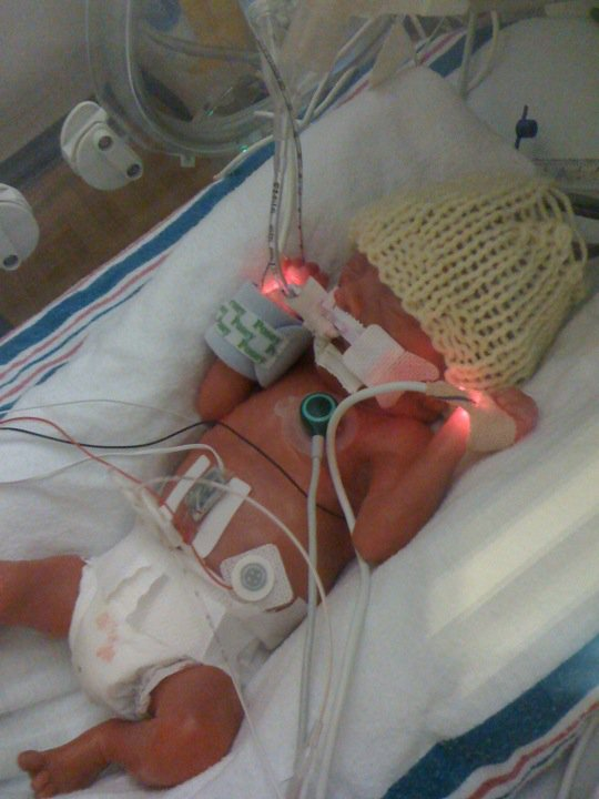 Baby born at 26 weeks pregnant she recently gave birth to a