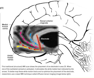 Advancements in Meta Psychology: A Wiring Diagram in the Brain for ...