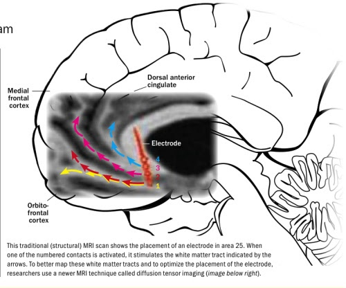 Advancements In Meta Psychology  A Wiring Diagram In The