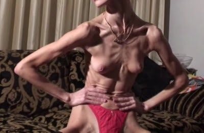 anorexic woman, anorexia