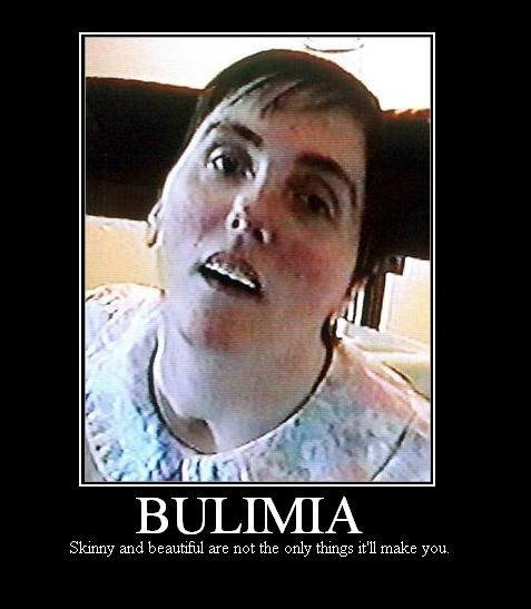 bulimia case The risk factor interviews with the subjects with no eating disorder focused on the period before the age at onset of a matched case of bulimia nervosa, 20 but for the present study, there was group matching.