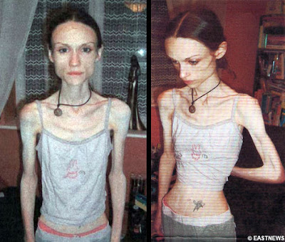 isabelle caro photos before anorexia
