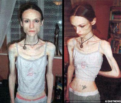 http://4.bp.blogspot.com/_10yYjoTIYE0/SOITcCHH3kI/AAAAAAAACIE/Lwqx_TU3NUE/s400/Lauren+Bailey+-+recovered+anorexic.jpg
