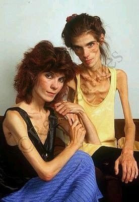 Samantha Kendall and Michaela Kendall, twins, anorexia