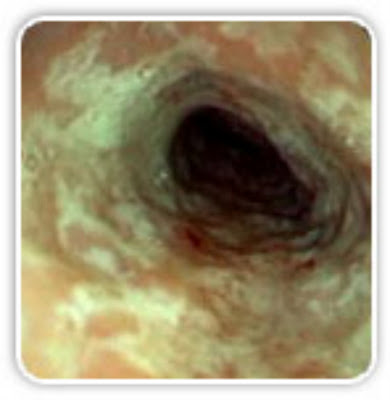 esophagitis from purging, bulimia