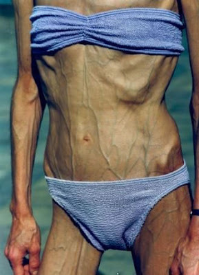 anorexic older woman, bikini