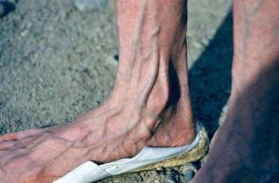 anorexic woman foot