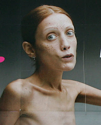 Anorexic Model Isabelle Caro Dies at 28 | TV Guide