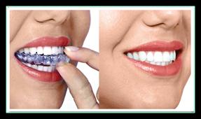 Hcortodoncia ortodoncia invisible - Como alinear los dientes en casa sin brackets ...