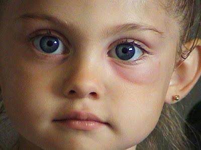 czirr family: allergic to mosquito bites?this too shall pass, Skeleton