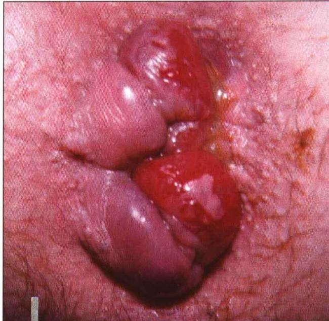 Anal cancer or polyp pictures