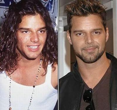 El Antes y Despues de la Estrellas - Ricky Martin