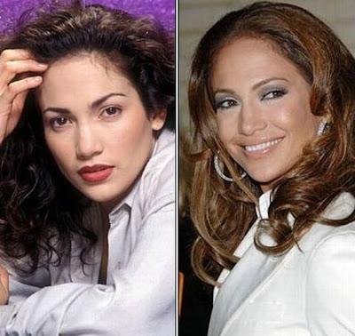 El Antes y Despues de la Estrellas - Jennifer Lopez