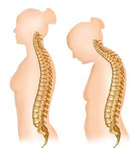 centro columna vertebral s c: