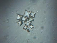 medical technology, calcium oxalate crystals, clinical microscopy