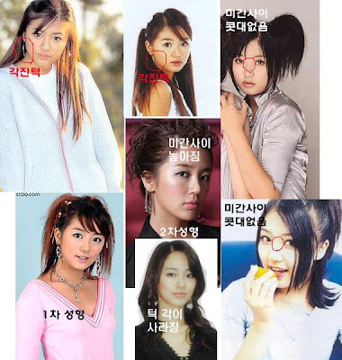 Breasts  Eyes and NoseYoon Eun Hye Before After