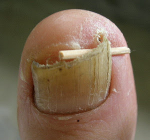 Ingrown toenail home remedies.