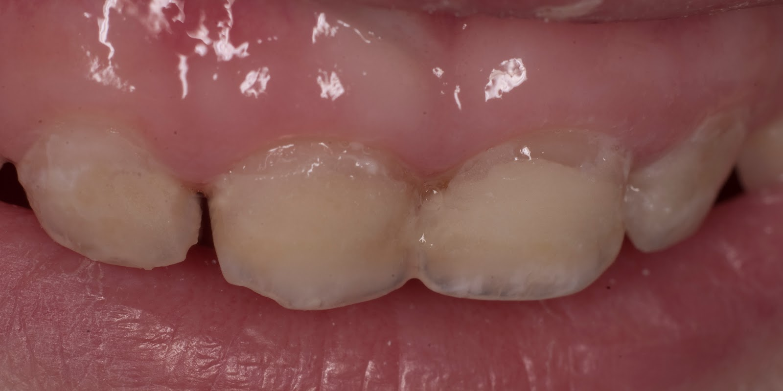 Как ребенку запломбировать зуб