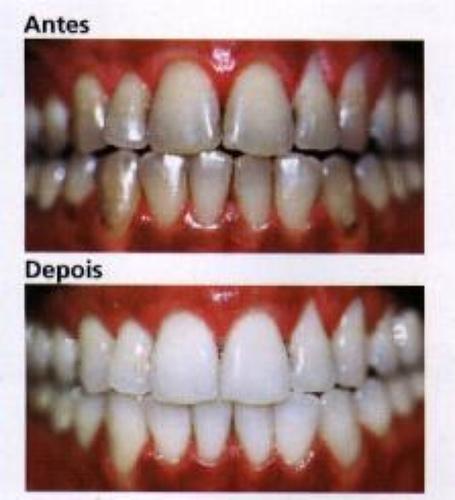 I Clareamento Dental