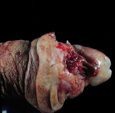 Dead Picture Dead People Horrific Pictures