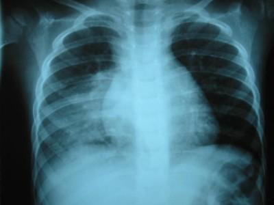 Salud en Bolivia