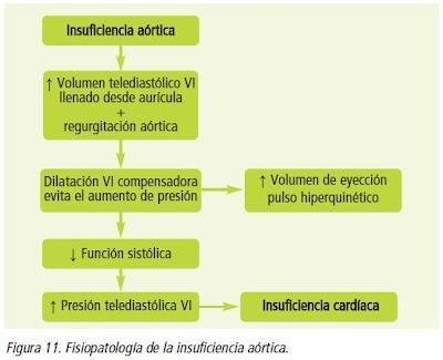 Figura 11. Fisiopatología de la insuficiencia aórtica.