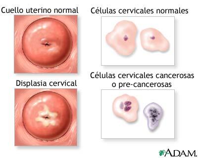 diferencias de celulas