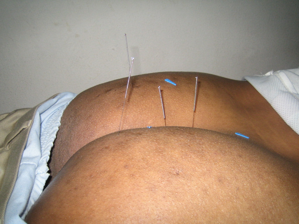 Acupuncture coures
