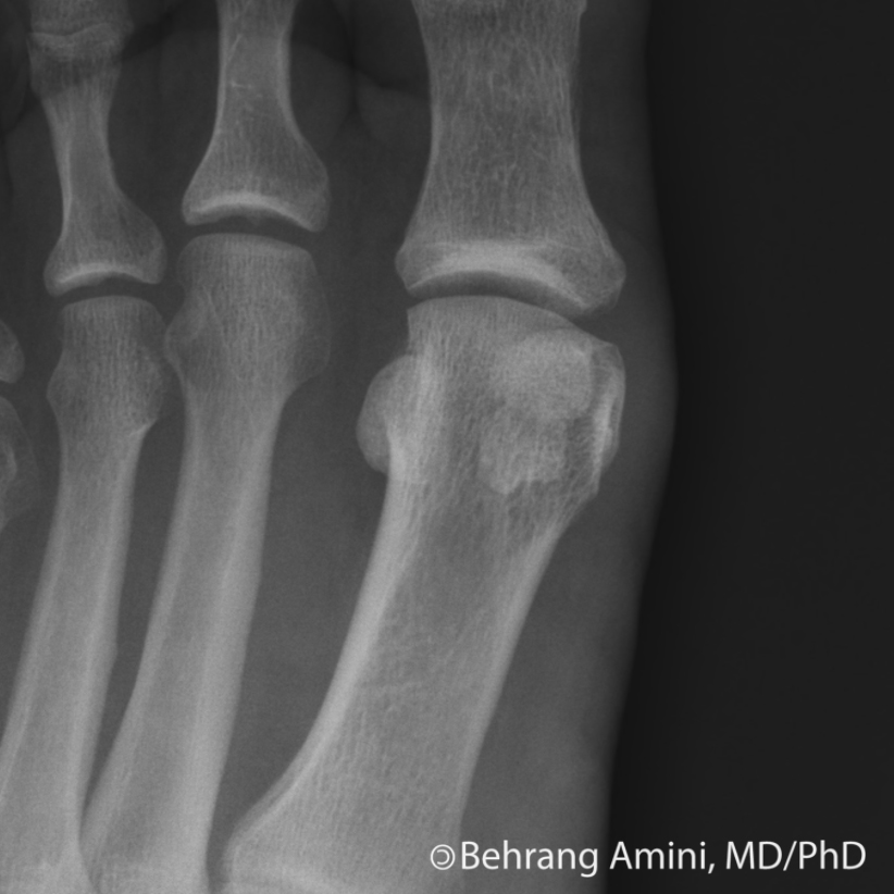 Bipartite Sesamoid vs Fractured Sesamoid