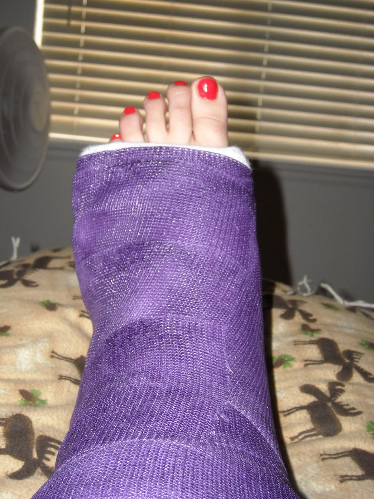 Doll Leg Cast http://thephoenixmovie.com/fcms/purple-leg-cast