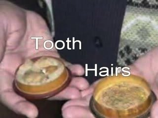 Gigi dan Rambut Nabi