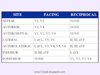 12leadekg blogspot com 2011 02 rapid axis chart hemiblock chart html
