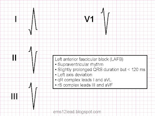 Left anterior fascicular block lafb ems 12 lead this is an example of why axis determination is an important part of 12 lead ecg interpretation the most common causes of left axis deviation are left ccuart Image collections