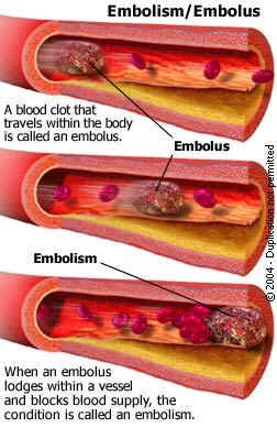 Beautiful An Embolism Is An Obstruction In A Blood Vessel Due To A Blood Clot Or  Other Foreign Matter That Gets Stuck While Traveling Through The  Bloodstream.