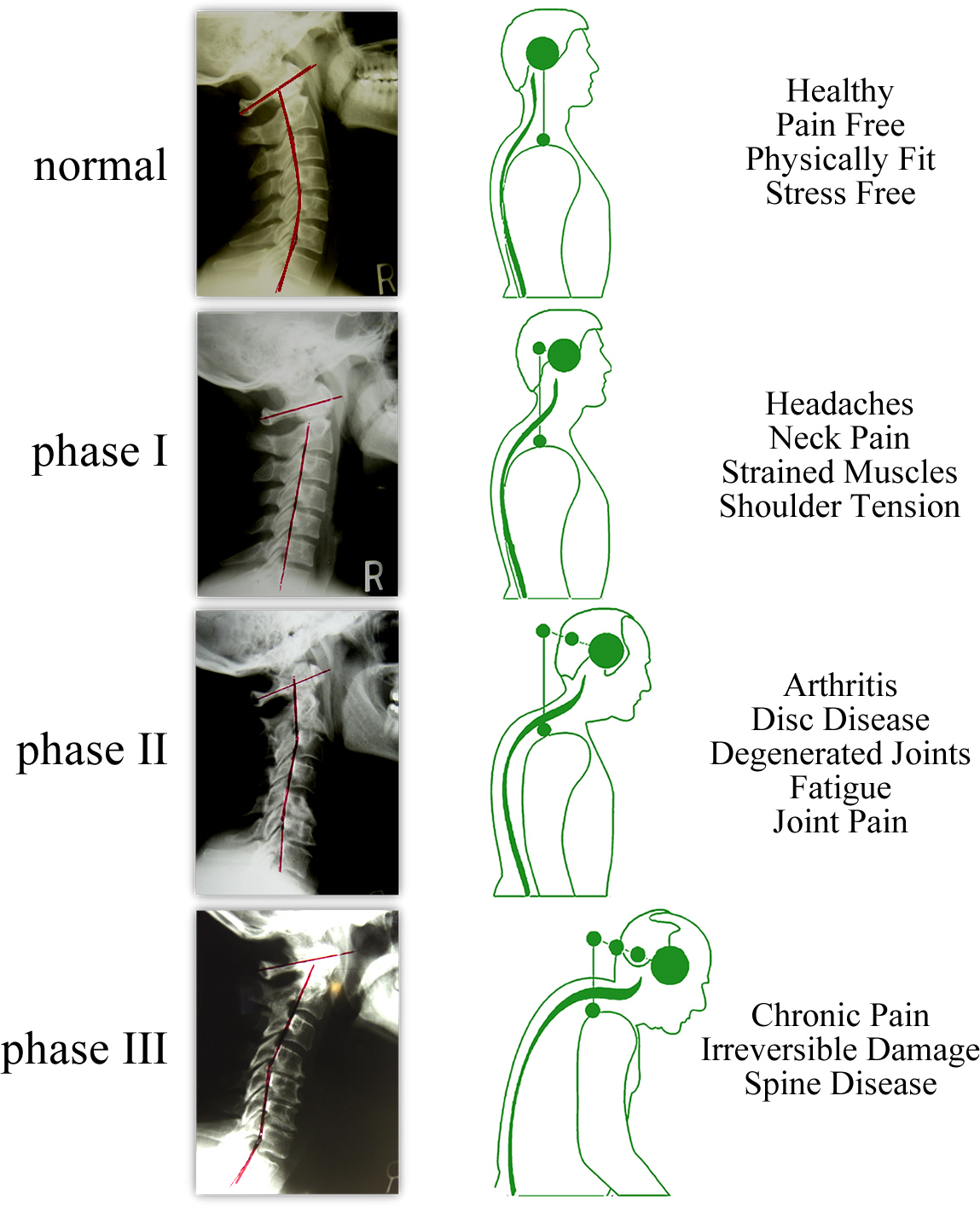 DFW Wellness Fundamentals: Posture is the Window to Your ...