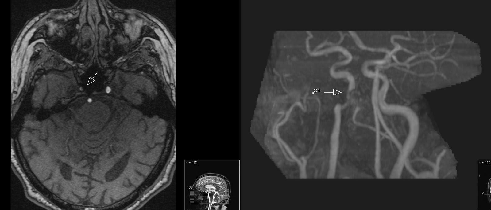 Radiology MRI: Carotis Segments
