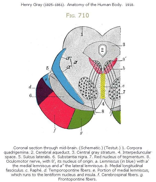 Radiology MRI: Oculomotor Infarct