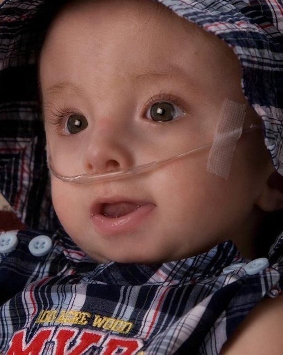 Trisomy What Is The Disease Affecting Rick Santorum s Daughter