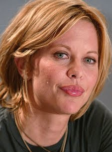 Bad Celebrity Lip Job Seen On www.coolpicturegallery.net