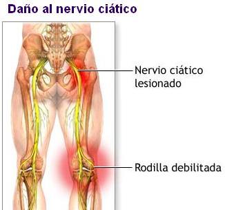 Los dolores en el lado derecho tira el pie y los riñones