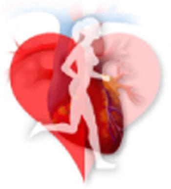 heart attack diagram. heart attack diagram.